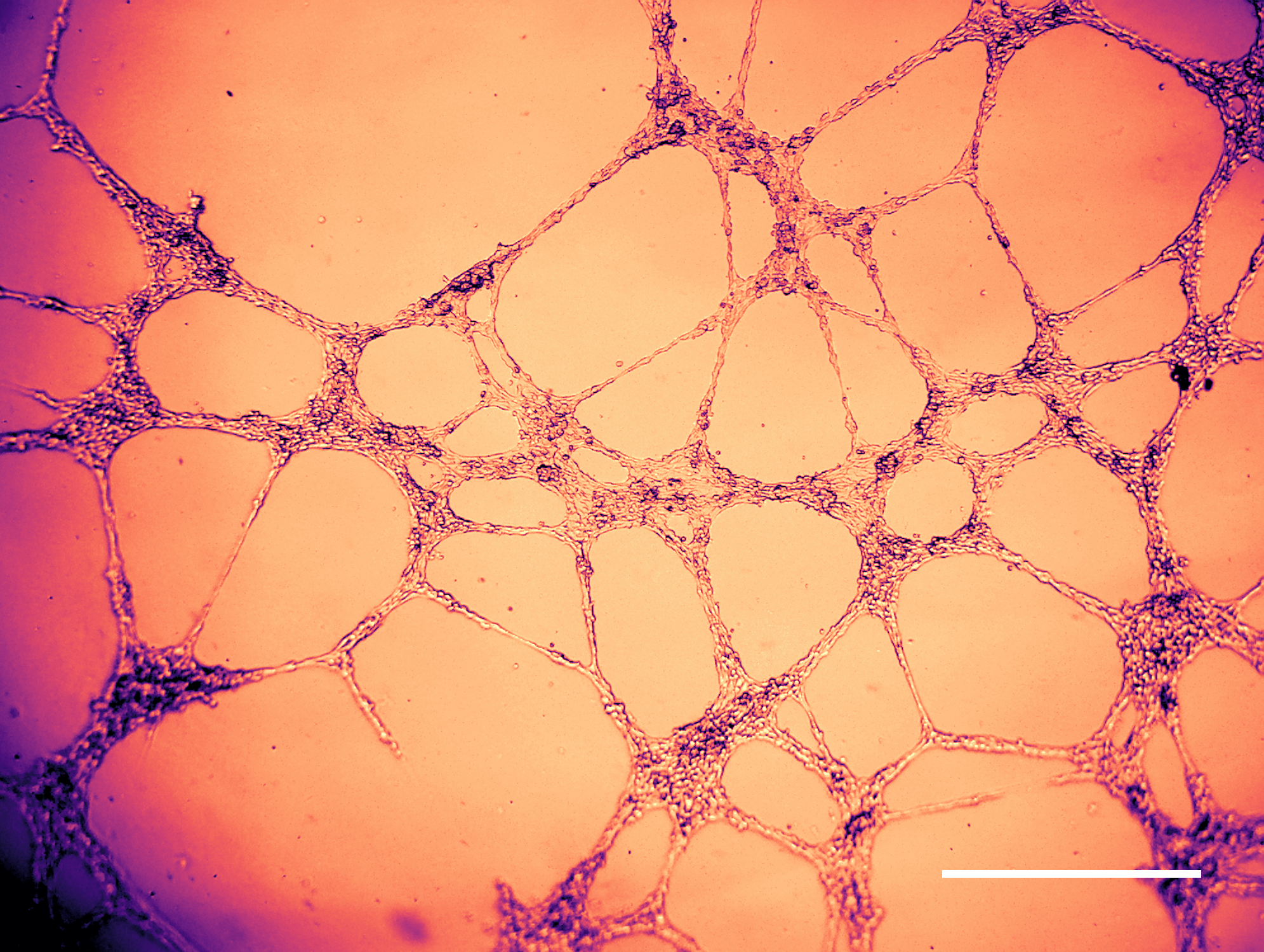 A microscopic photo showing some early signs of bovine (cow) endothelial tube formation